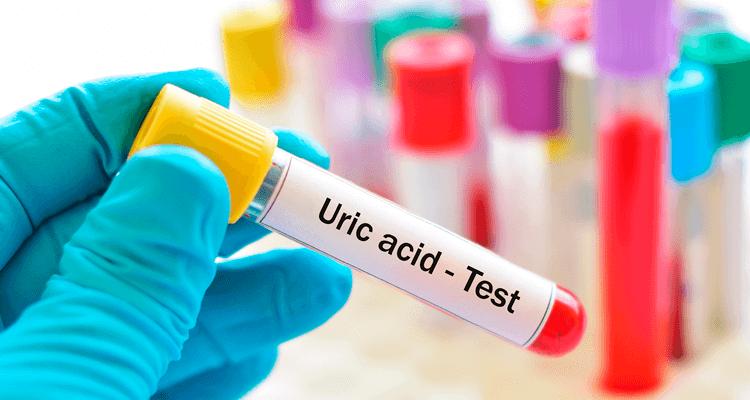 Médico segurando teste de ácido úrico